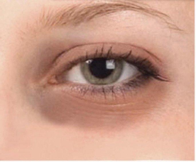 How To Remove Dark Circles Around Eyez